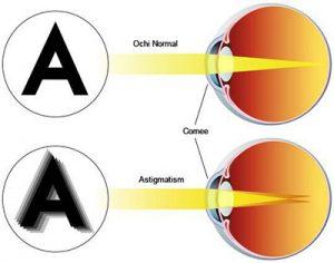 Astigmatism afectiune oculara
